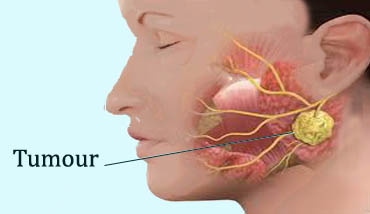 salivary gland cancer surgery