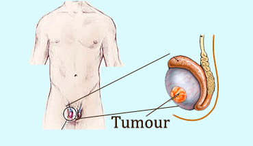 testis cancer operation in Ranchi